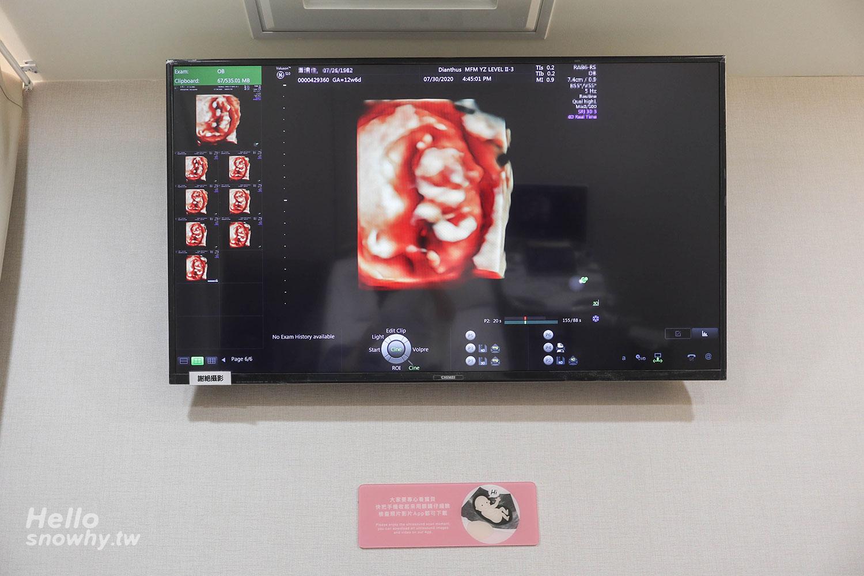 例行性產檢,自費產檢項目,初唐篩檢,頸部透明帶,NIPS,懷孕初期,懷孕日常,懷孕日記,白雪姬懷孕日記
